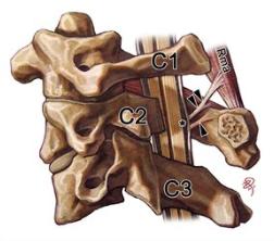 Snijzaalcursus 'Cervicale wervelkolom, hoofd-halsregio en kauwstelsel'